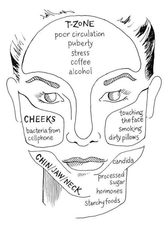 breakout breakdown what is causing your spots grazia rh graziadaily co uk Pimple Under Microscope acne face diagram causes
