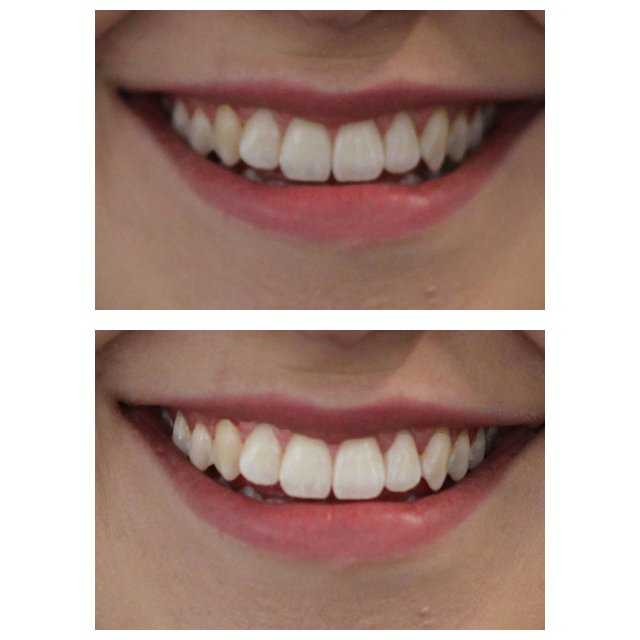 review does charcoal teeth whitening toothpaste actually work grazia. Black Bedroom Furniture Sets. Home Design Ideas